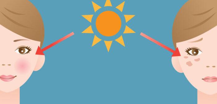 Få hjælp til pigmentforandringer efter en solrig sommer
